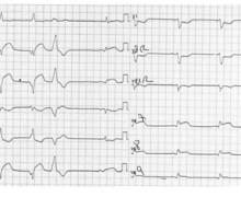 Infarctus inférieur, reperfusion et RIVA