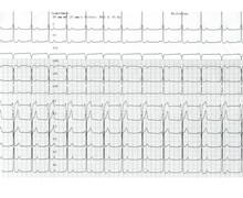 Intervalle PR court et pré-excitation ventriculaire