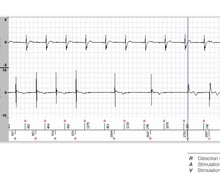 Switch for second-degree atrioventricular block
