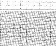 Etalonnage, calibration et calcul de la fréquence cardiaque