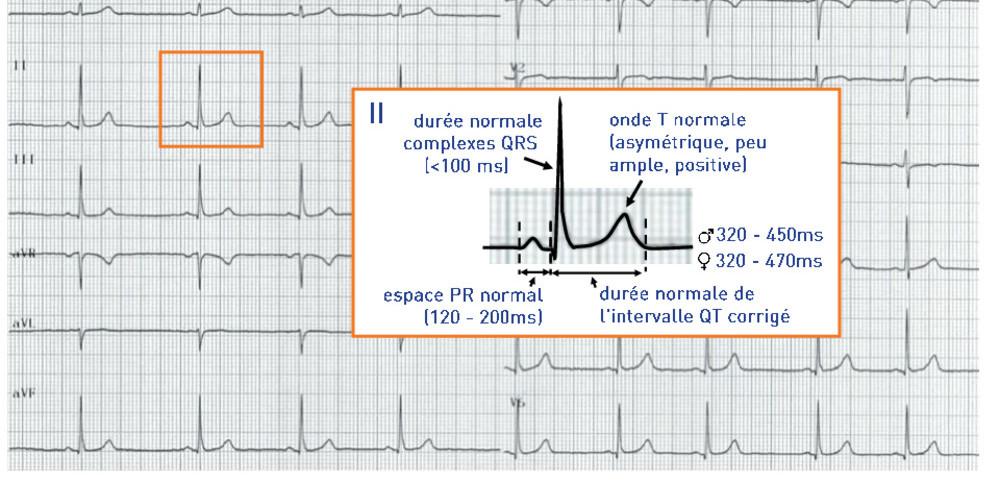 ECG normal (ECN) 2