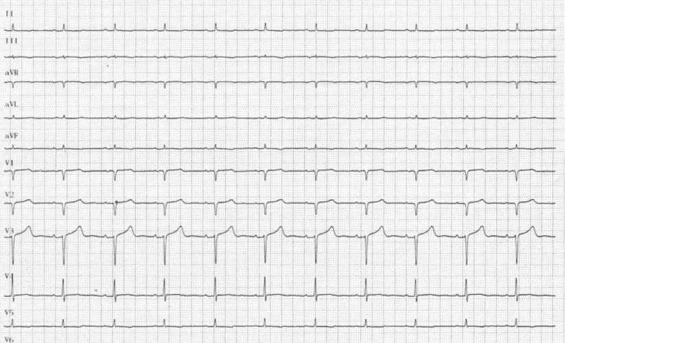 Amylose cardiaque (ECN)