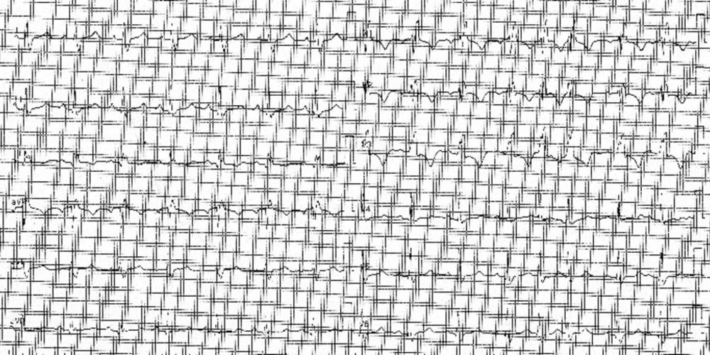 Embolie pulmonaire sévère (ECN)