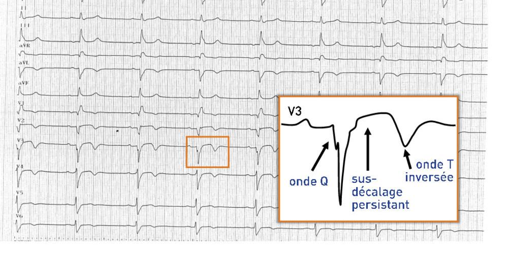 Anévrysme apical ventriculaire gauche (ECN)