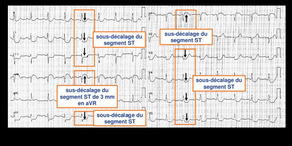 Lésion du tronc commun (ECN)