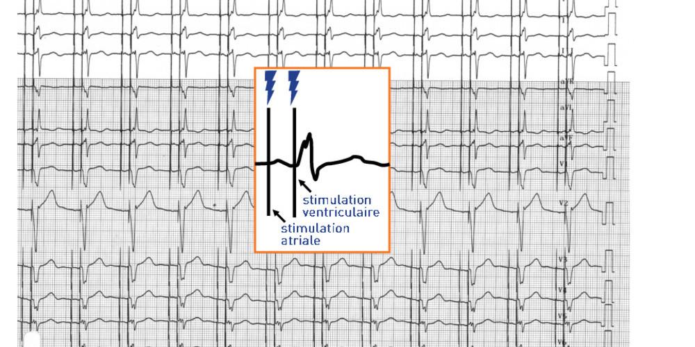 Stimulateur cardiaque (ECN)
