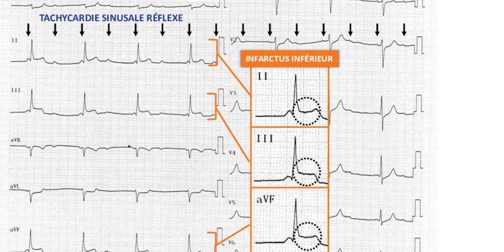 BAV III et infarctus inférieur (ECN)