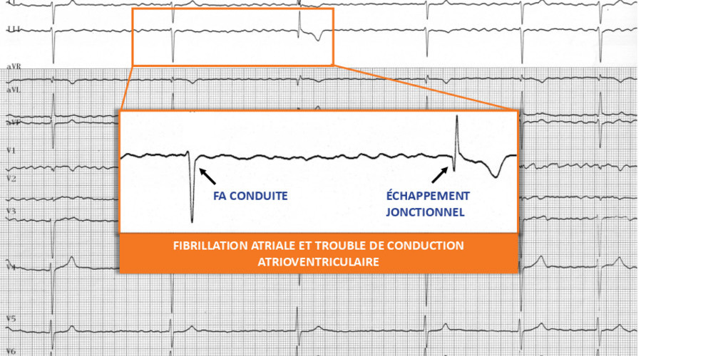 Fibrillation atriale et trouble de conduction atrio-ventriculaire (ECN)