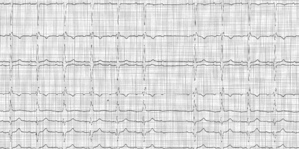 Bloc auriculo-ventriculaire du second degré type 2 (ECN)