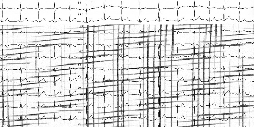 Erreurs de positionnement des électrodes (ECN)