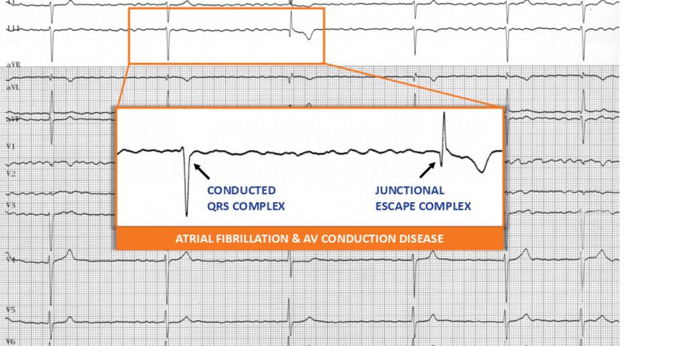 Atrial fibrillation and atrioventricular conduction disorder
