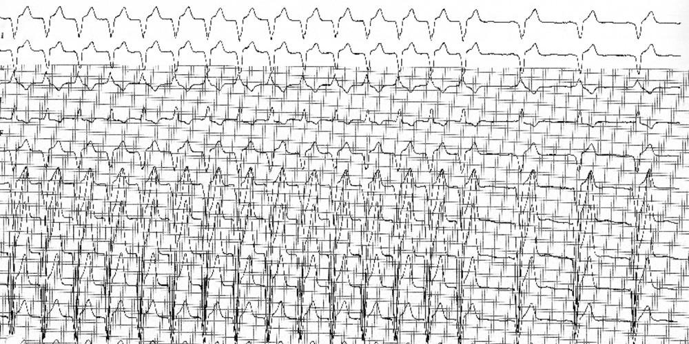 Tachycardie par réentrée électronique 2