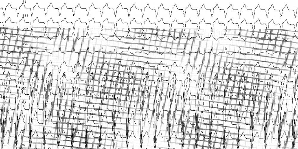 Tachycardie par réentrée électronique