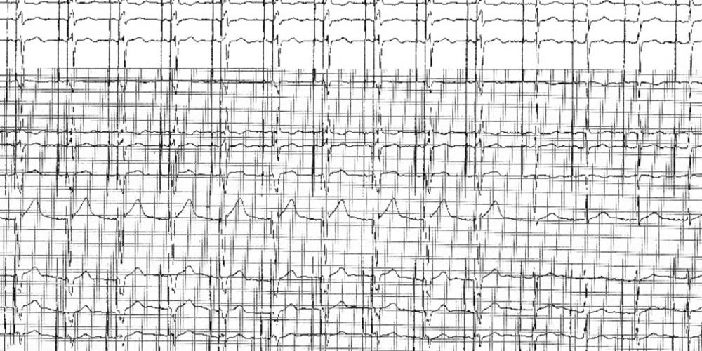 Réduction du pourcentage de stimulation ventriculaire