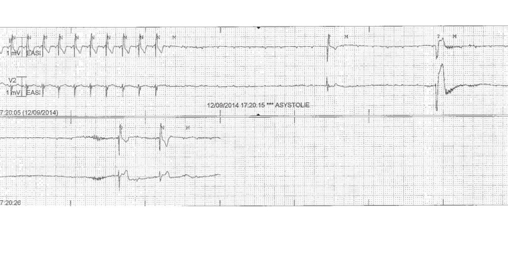 Syncopes in a patient with right bundle branch block and left anterior fascicular block