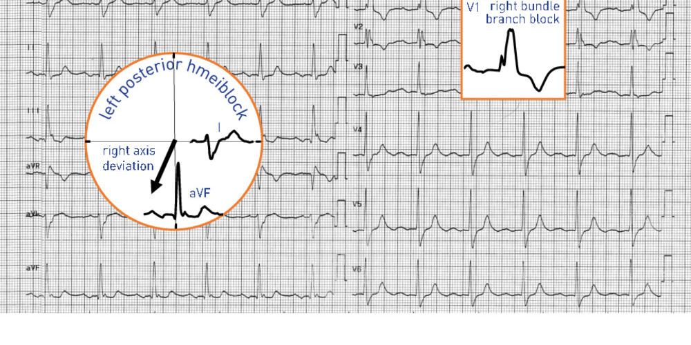 Syncope in a patient with right bundle branch block and left posterior fascicular block