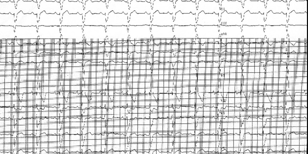 Right bundle branch block and right ventricular hypertrophy