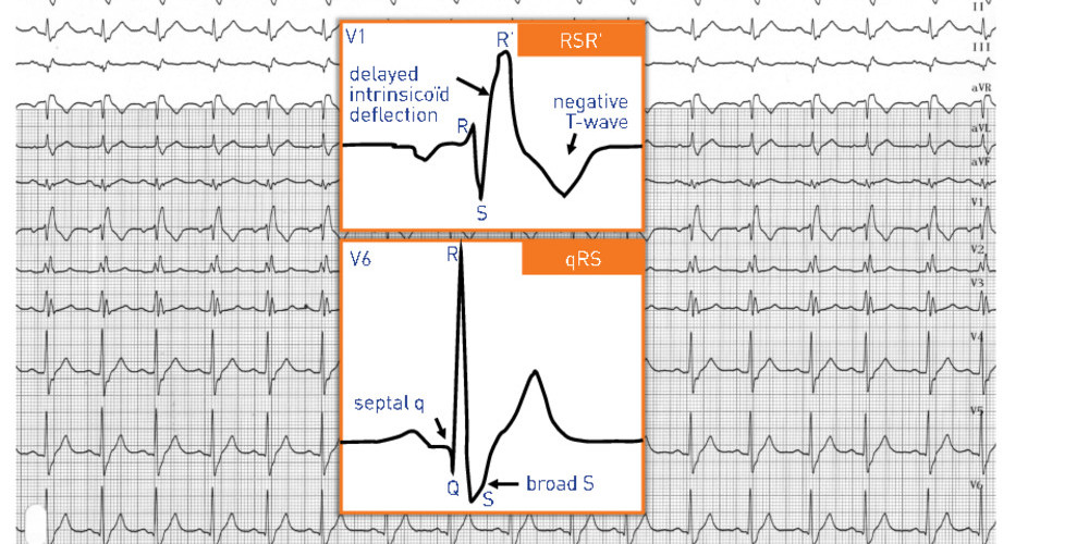 Complete right bundle branch block