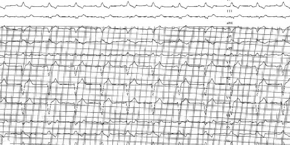 Left bundle branch block and syncope