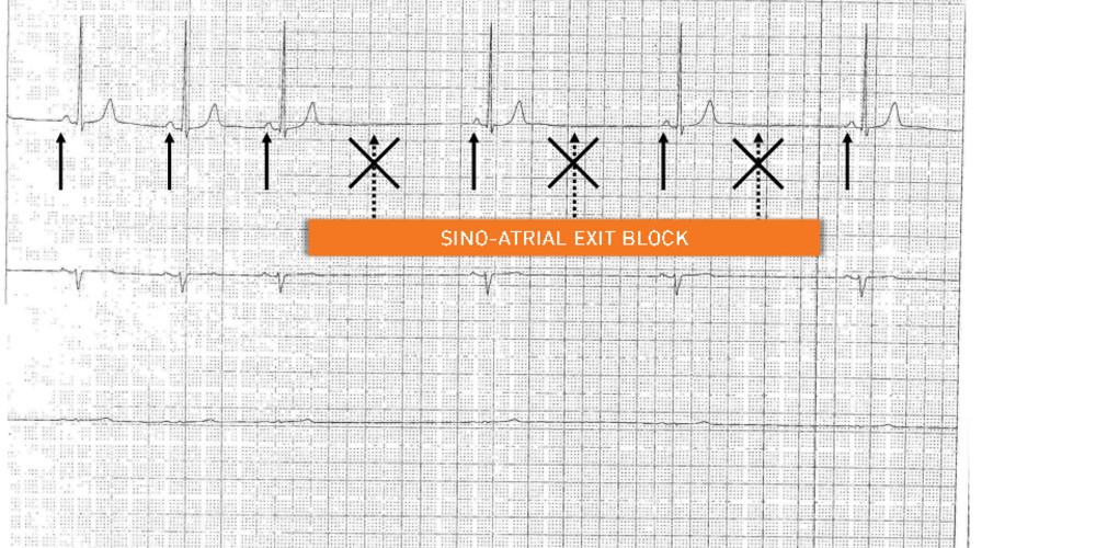 Sinoatrial block