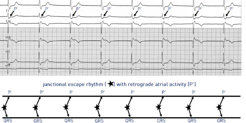 Sinus node dysfunction, junctional escape rhythm, exertional dyspnea