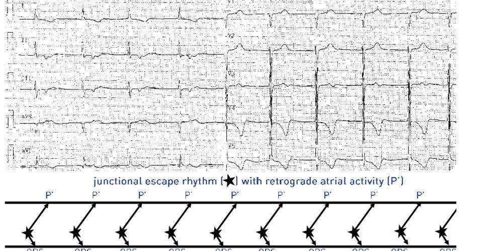 Sinus node dysfunction, junctional escape rhythm