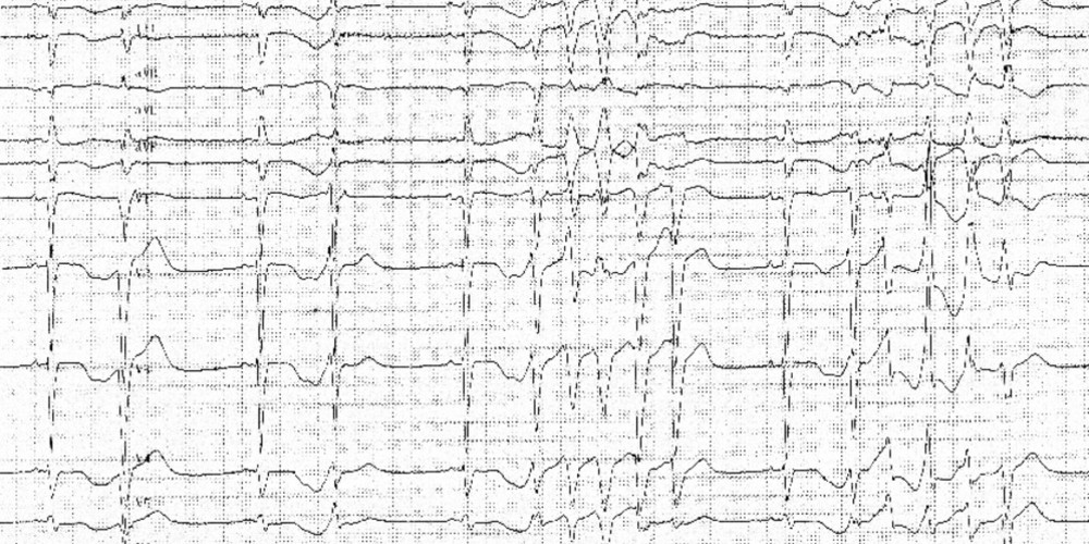 Major QT interval prolongation and polymorphic tachycardia