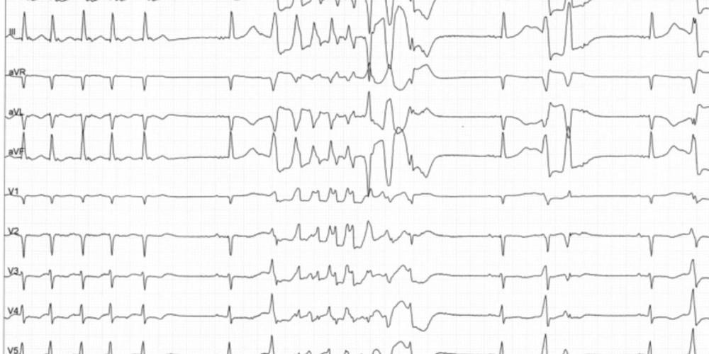 Torsades de pointes après réduction d'un épisode de fibrillation auriculaire