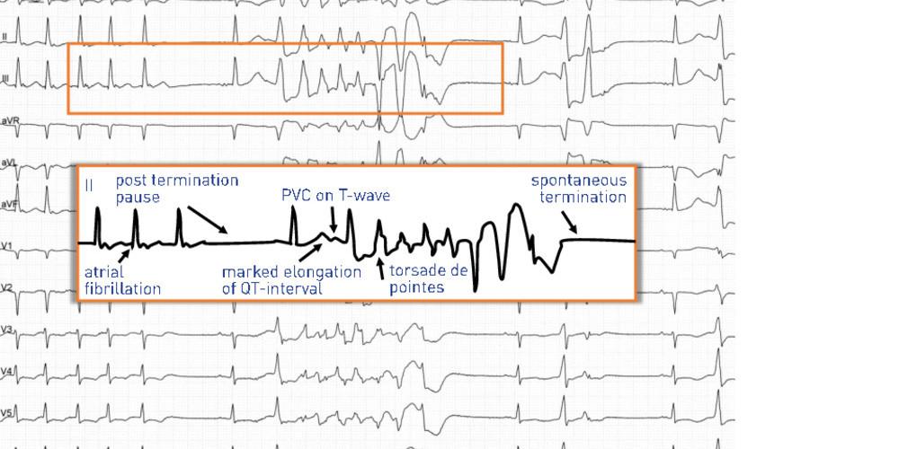 Torsades de pointes after termination of an atrial fibrillation episode