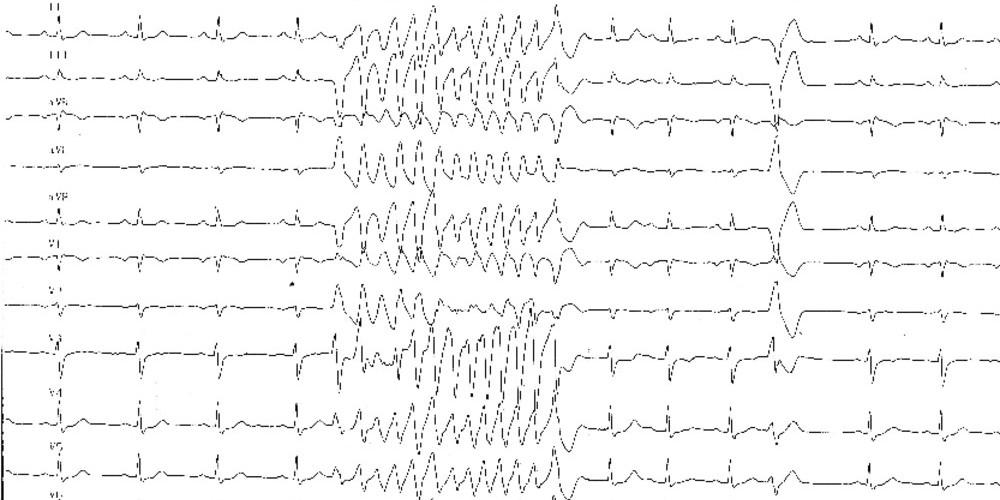 Idiopathic ventricular fibrillation