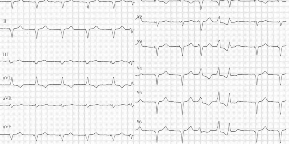 Branch-to-branch ventricular tachycardia due to primary non-ischemic cardiomyopathy