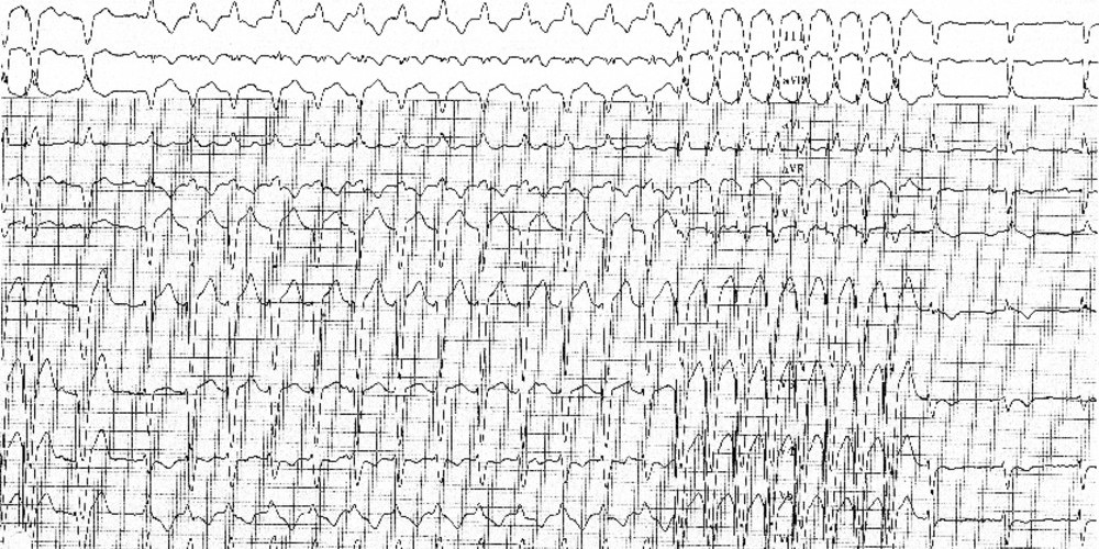 Ventricular tachycardia due to arrhythmogenic right ventricular dysplasia