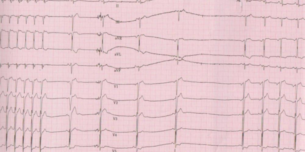 Arrêt d'une tachycardie par réentrée intra-nodale