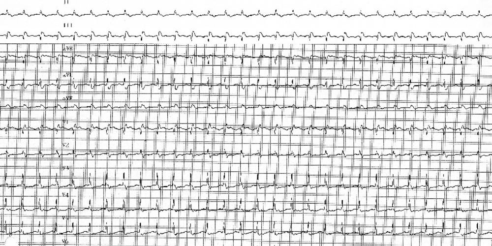 Tachycardie par réentrée intra-nodale typique