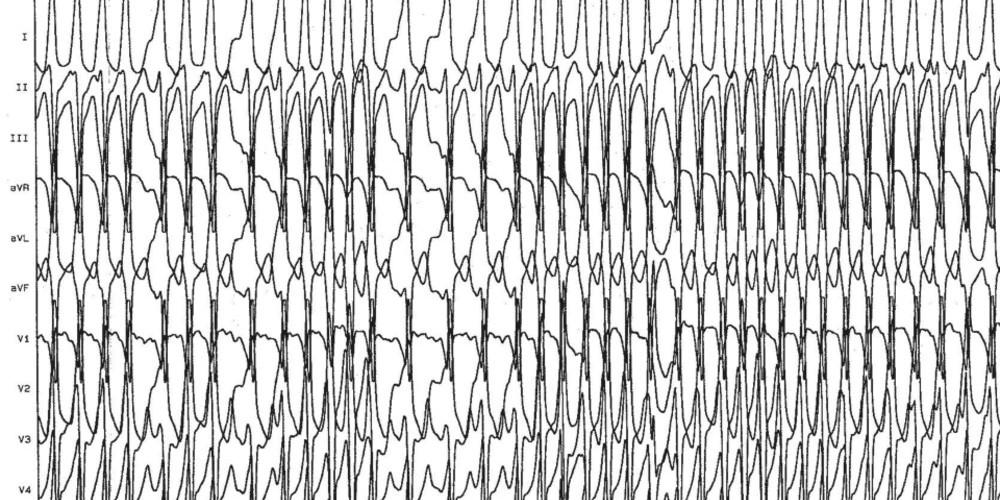 Fibrillation auriculaire, voie accessoire et risque de mort subite