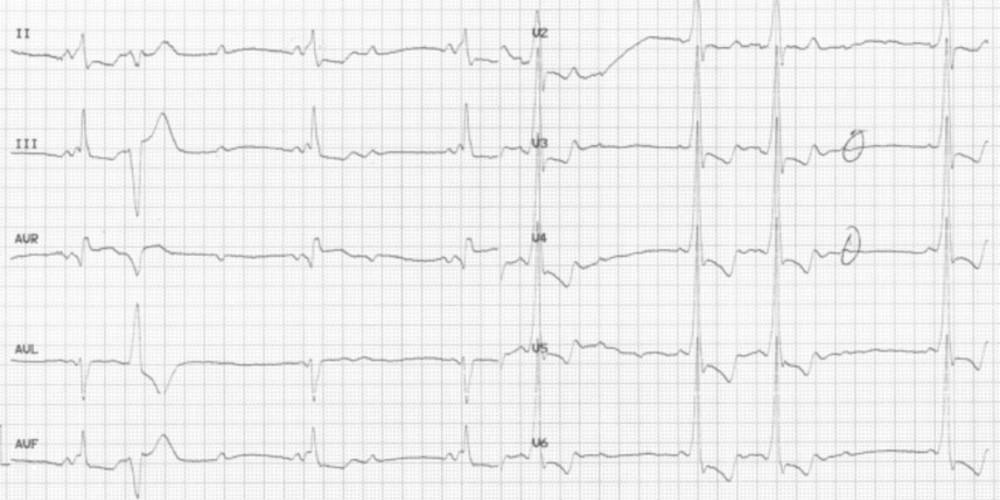 Wolff–Parkinson–White et bloc auriculo-ventriculaire