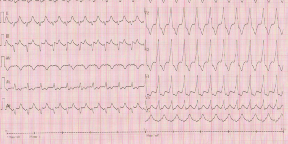 Antidromic tachycardia due to an accessory pathway