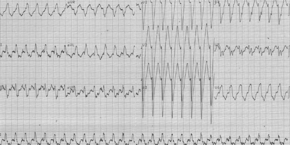 Orthodromic AVRT and functional left bundle branch block