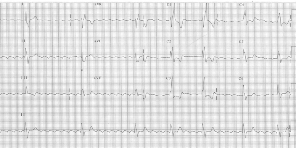 Common flutter in a patient with congenital heart disease