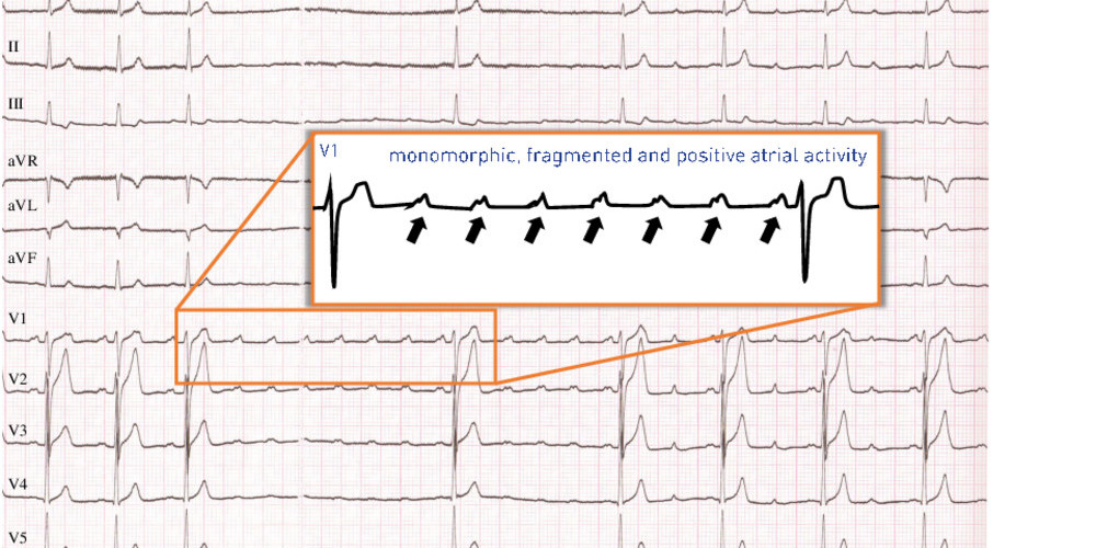 Leftsided flutter in a healthy heart