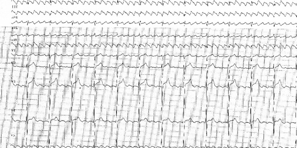 Common flutter | Cardiocases