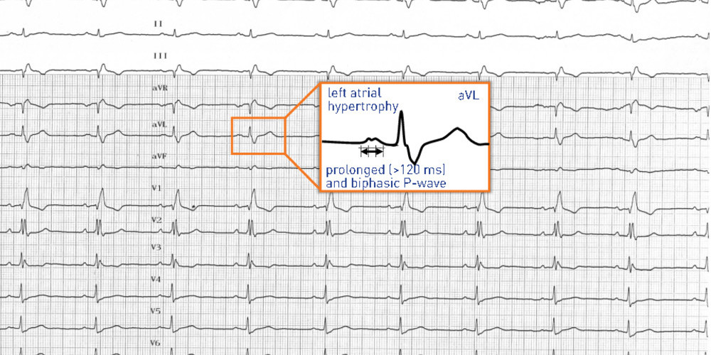 Left atrial enlargement and atrial fibrillation