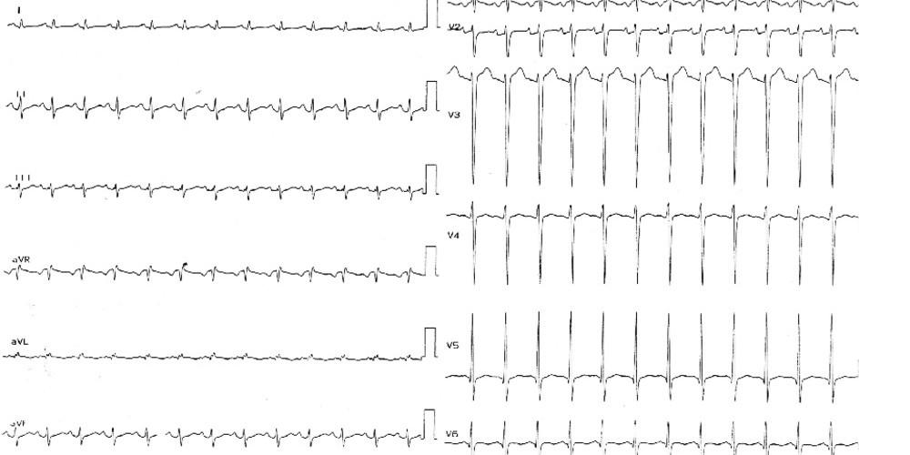 Sinus tachycardia | Cardiocases