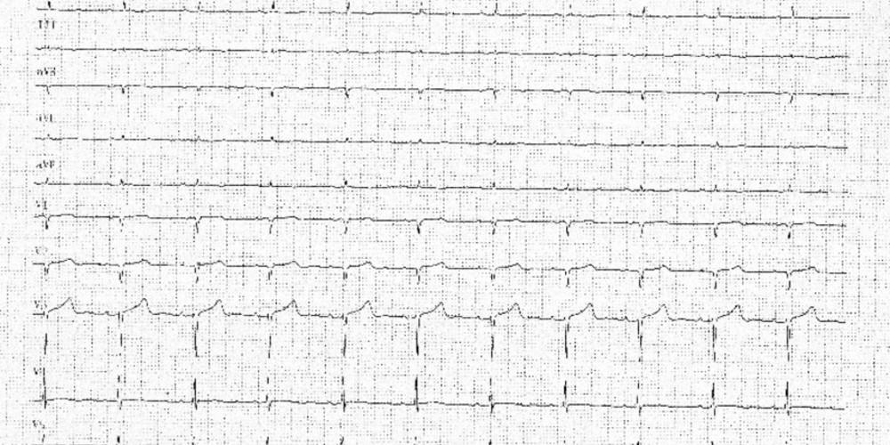 Amylose cardiaque