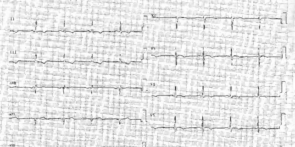 Evolution électrocardiographique lors d'une péricardite aigüe