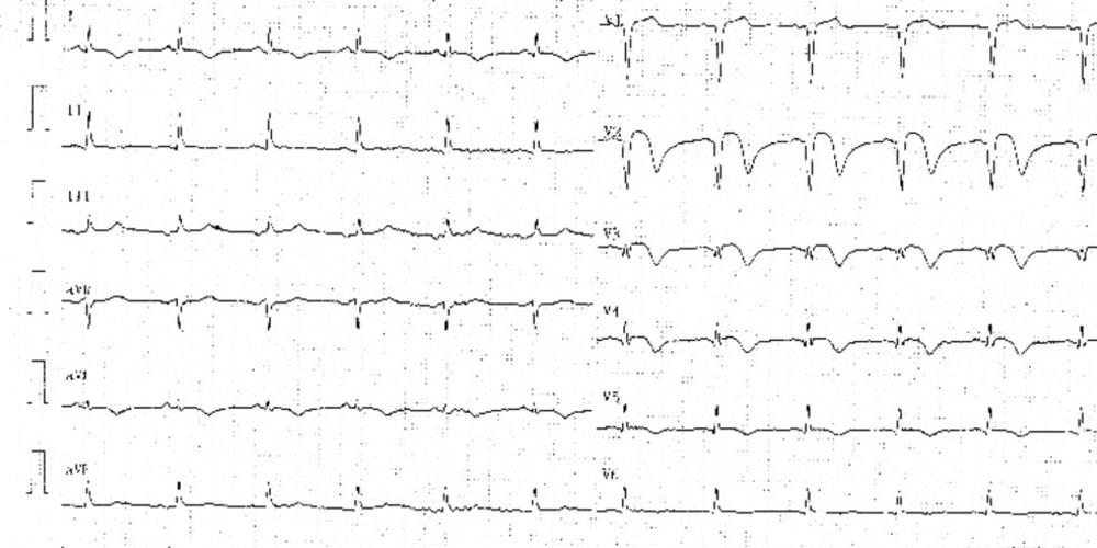 Evolution des tracés lors d'un infarctus antérieur