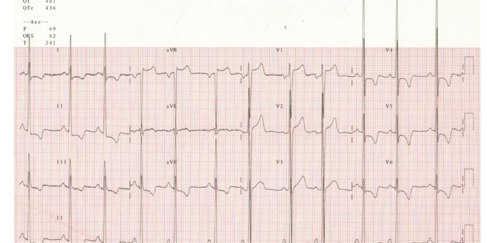 Left Ventricular Hypertrophy Cardiocases