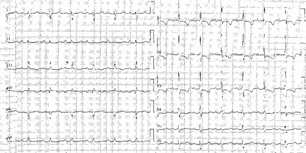 Right ventricular hypertrophy