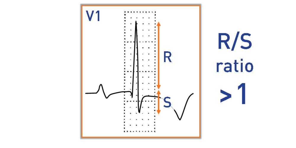 Right Ventricular Hypertrophy Cardiocases