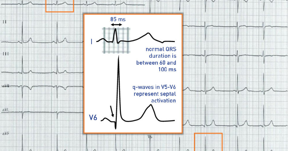 Normal ventricular activation and QRS-complex duration